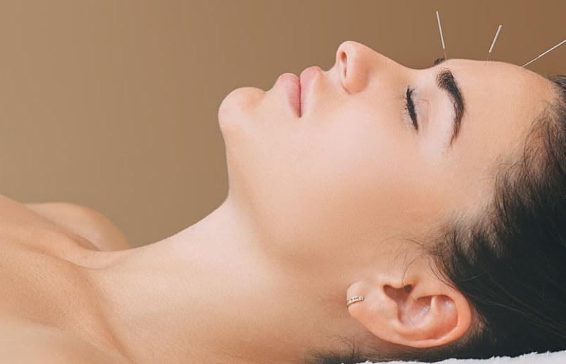 Akupunktur Nedir? Ne İşe Yarar?